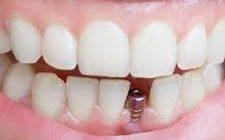 Все, что вы хотели знать о зубных имплантах
