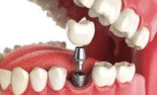 Протезирование зубов — лучшее решение для тех, кто хочет вернуть естественную улыбку